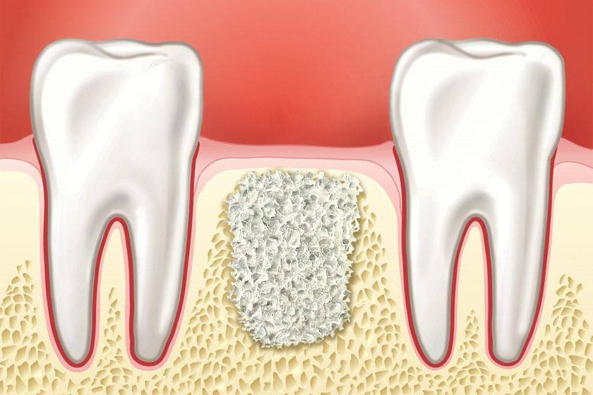 Этапы имплантация зубов