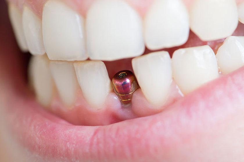 Иимплантация зубов передних зубов