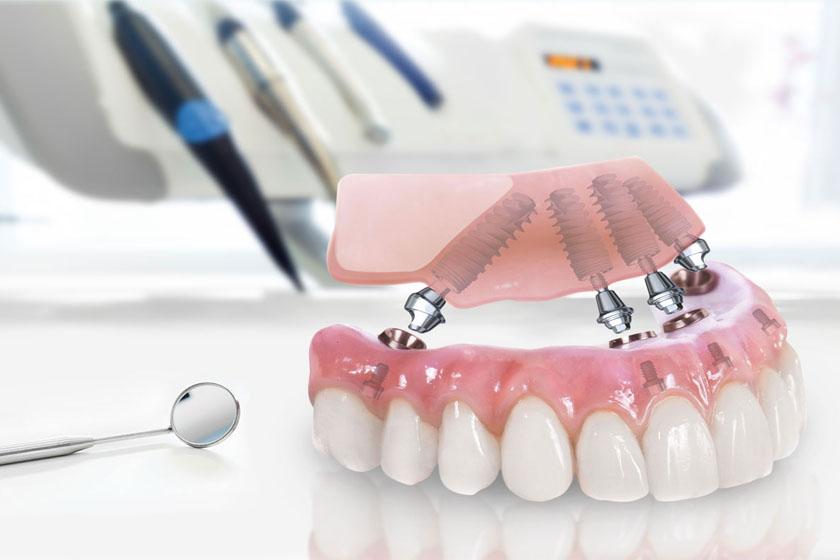 Имплантация зубов allon 4