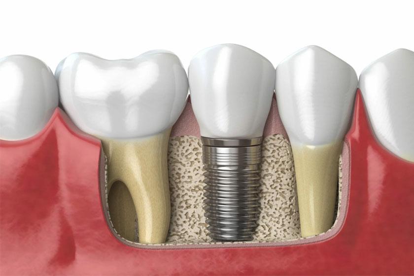 Имплантация зубов и алкоголь