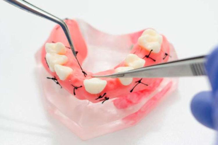 Имплантация зубов после снятия швов