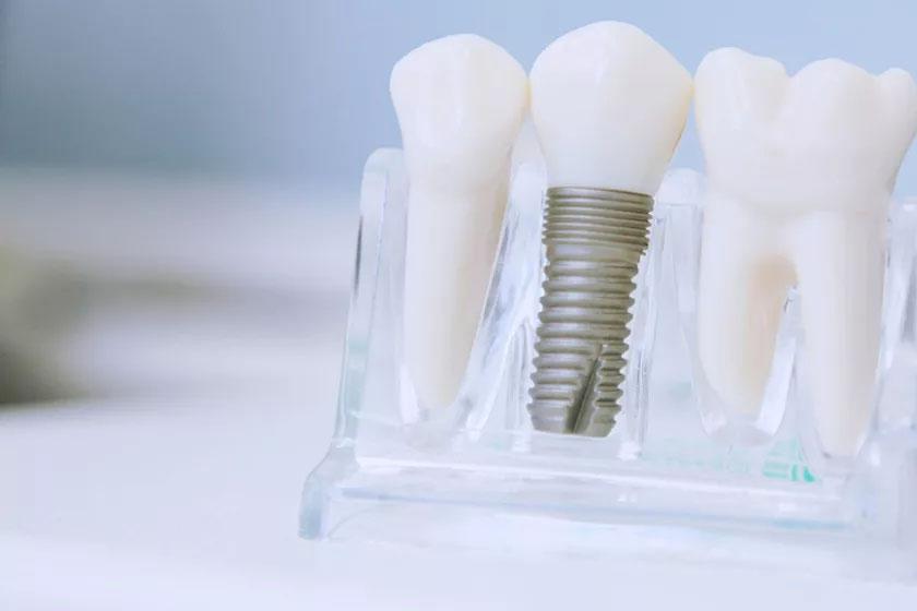 Как подготовиться к имплантации зубов