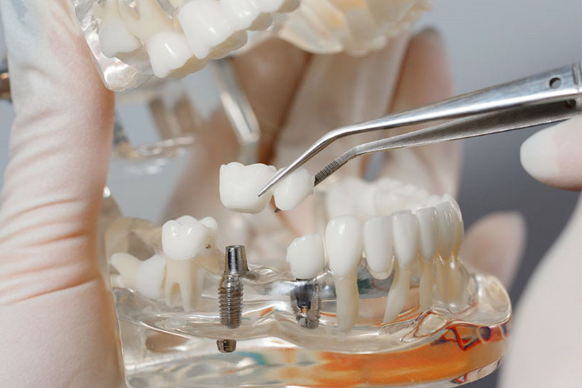 Как проходит имплантация зубов поэтапно