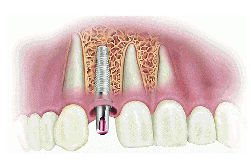 Налоговый вычет за имплантацию зубов
