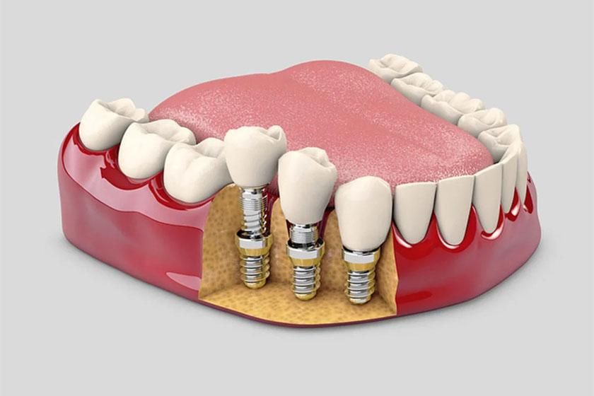 Отек после имплантации зуба