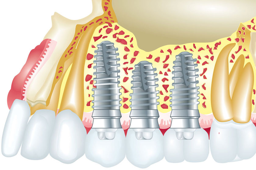 Виды имплантации зубов