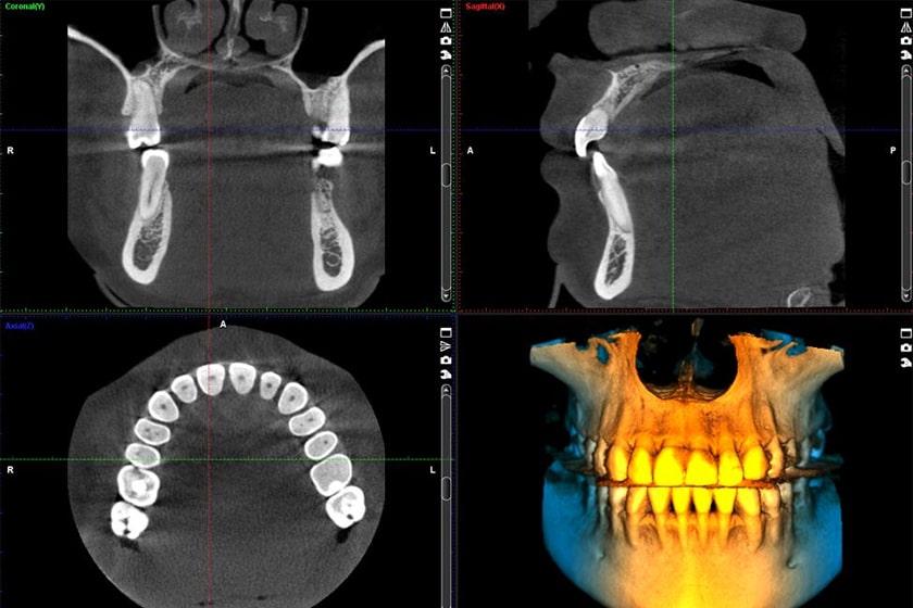 Безболезненность процедуры компьютерной томографии