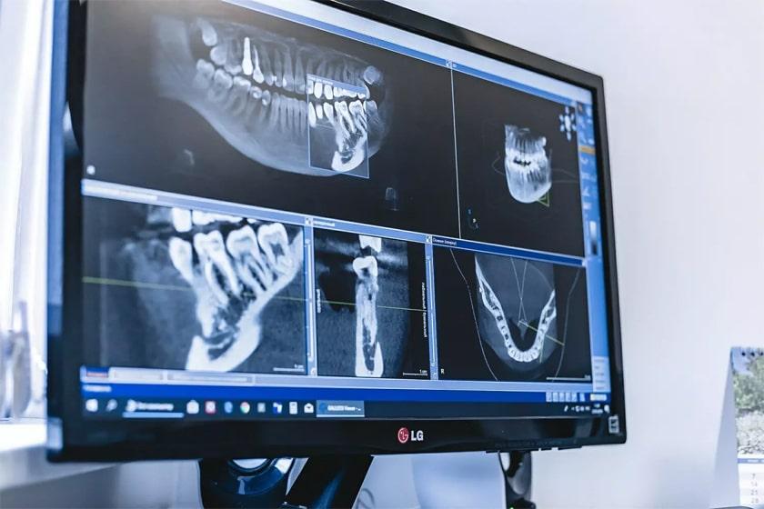 Реабилитация после 3d компьютерной томографии