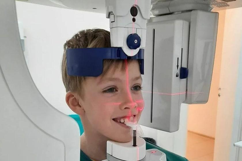 Безопасность рентгеновского снимка зубов