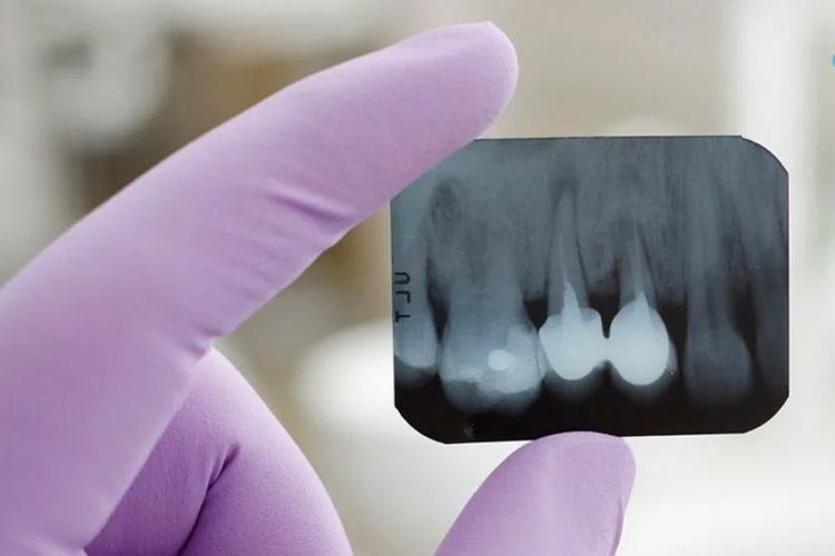 Что такое рентгеновский снимок зубов