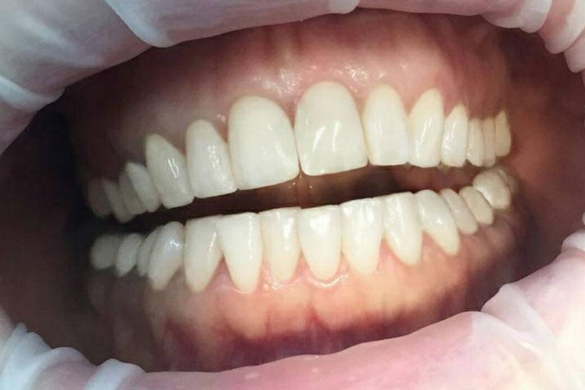До и после лечения подвижности зубов