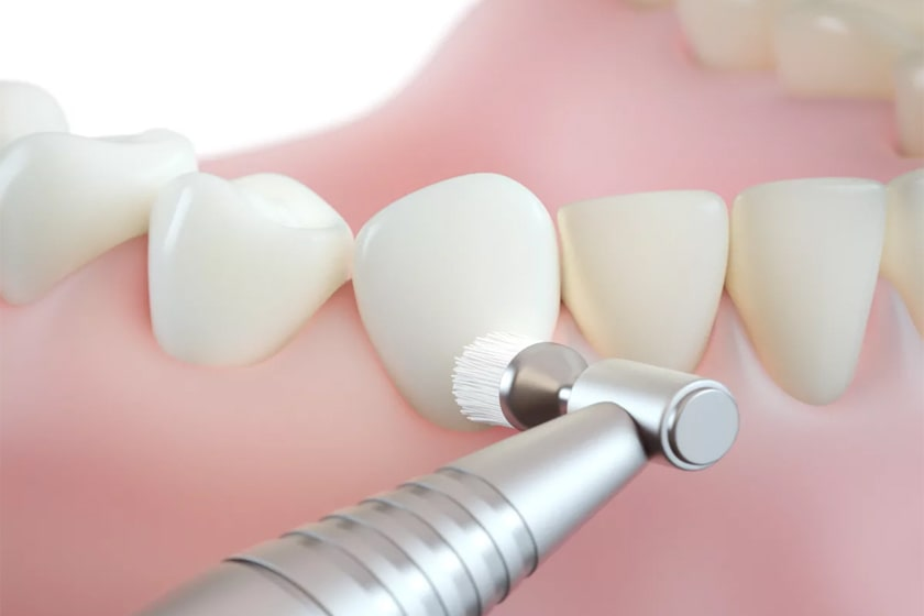 Как делают профессиональную чистку зубов