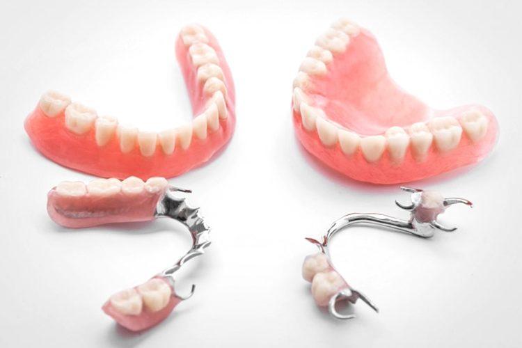 Как делают протезирование зубов