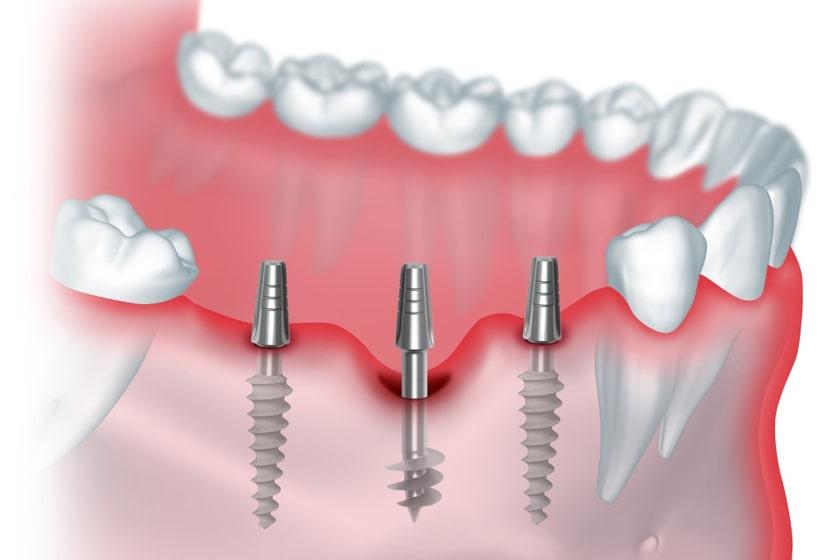 Стоимость имплантации зубов в Москве