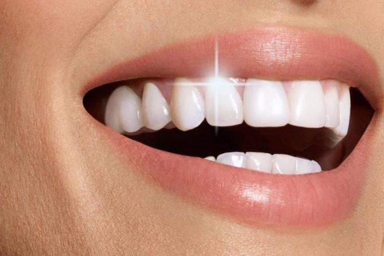 Стоимость отбеливания зубов в Москве