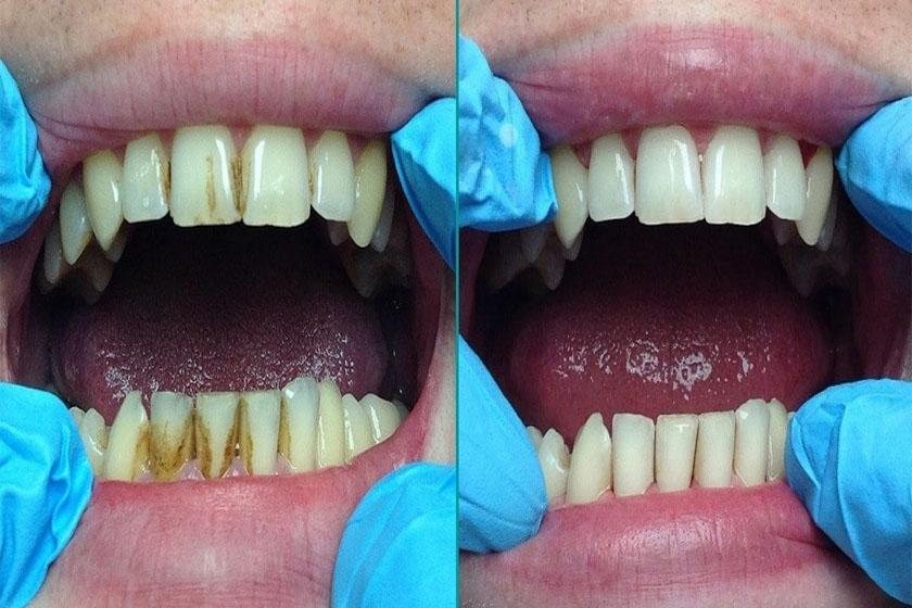 До и после снятия зубных отложений