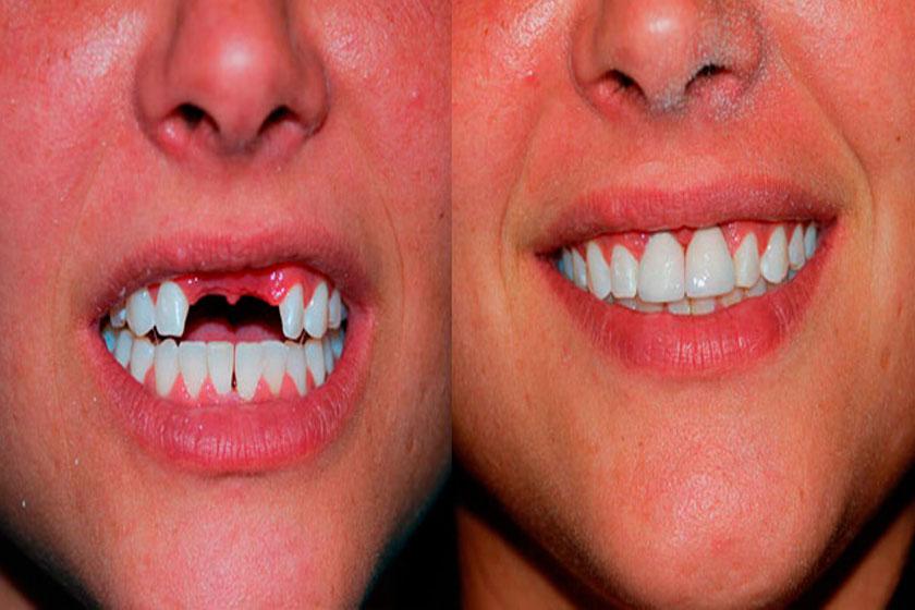 До и после установки нейлоновых съемных протезов