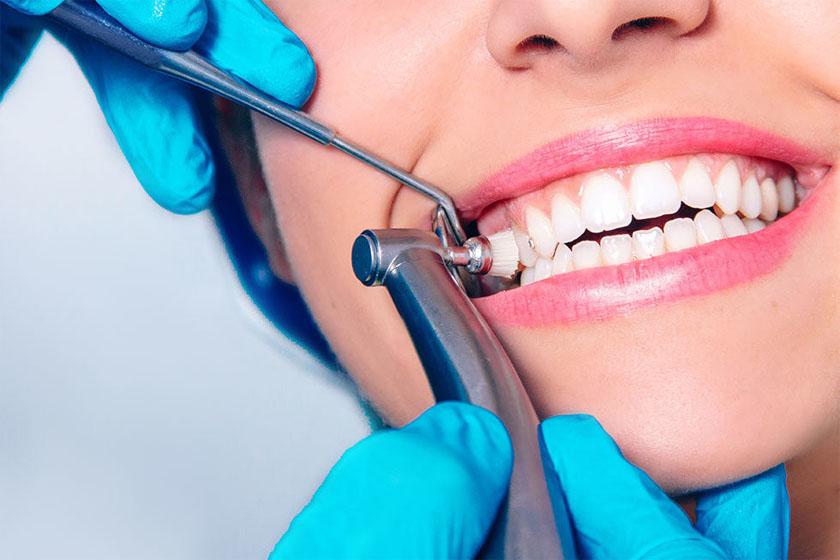 Как снимают зубные отложения