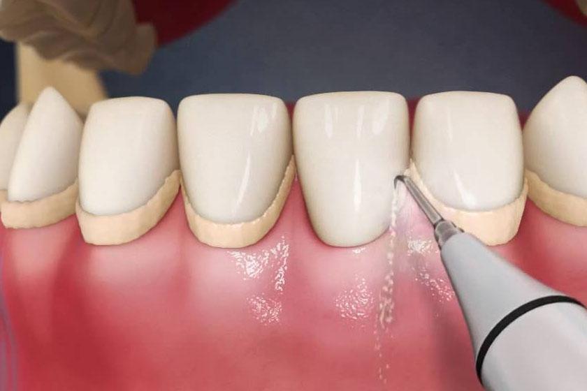 Методы снятия зубных отложений