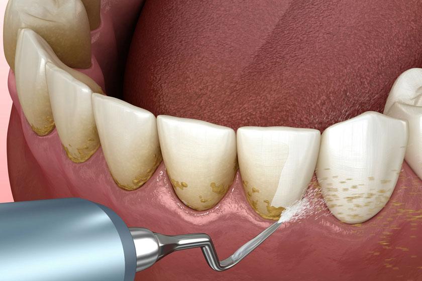 Противопоказания к снятию зубных отложений