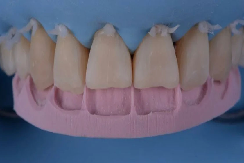 Реабилитация после исправления стираемости зубов