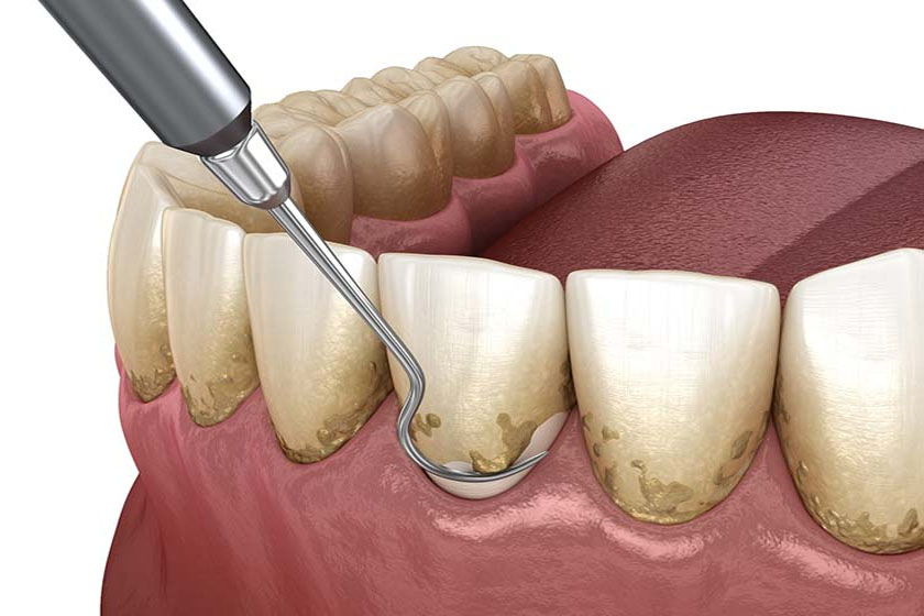 Реабилитация после снятия зубных отложений