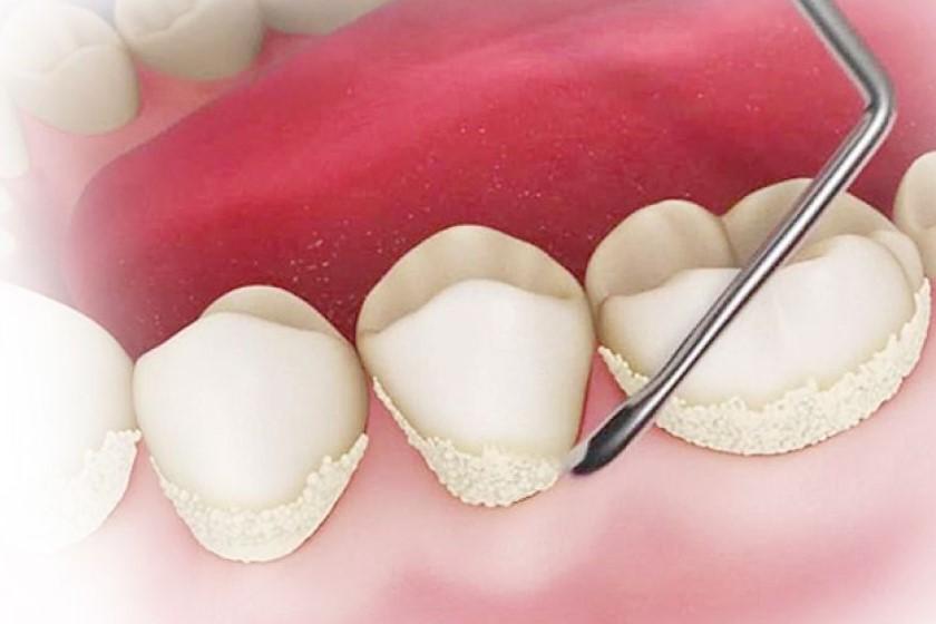 Стоимость снятия зубных отложений в Москве