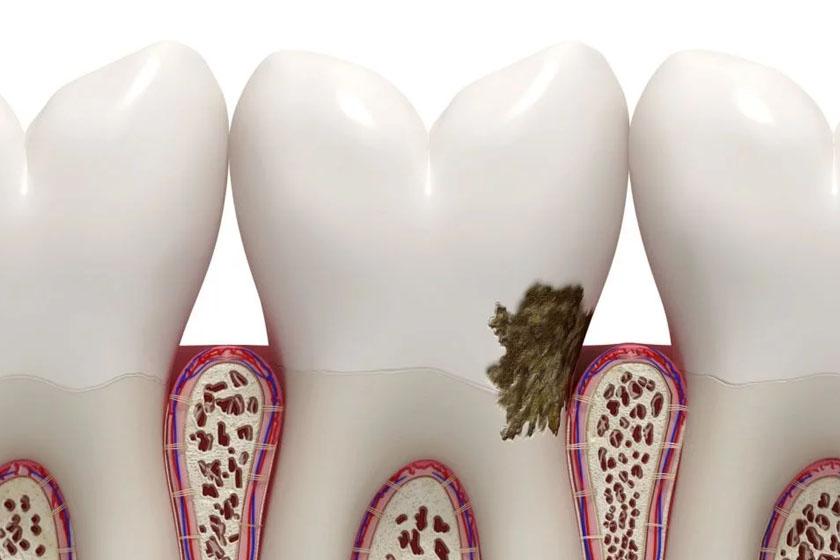 Как вылечить кариес без стоматолога