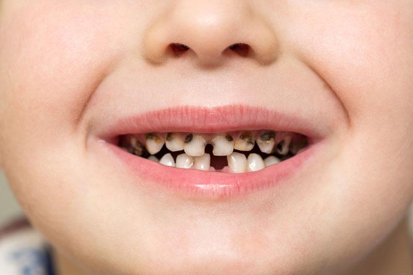 Кариес у детей до 3 лет лечение